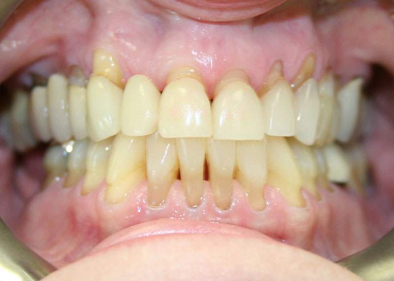 anterior-crowns-and-veneers-1