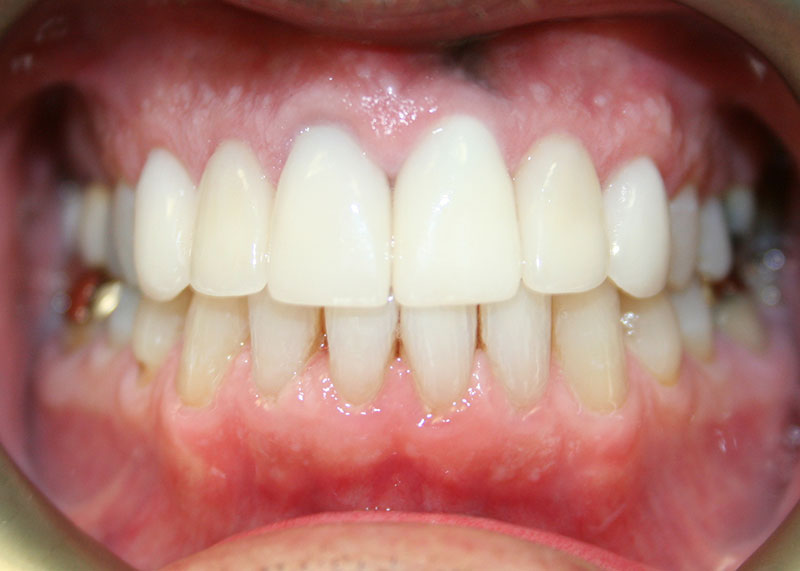 anterior-crowns-and-veneers-2